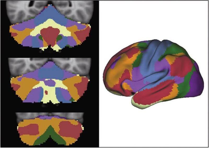 TDAH-Autisme-Cervelet